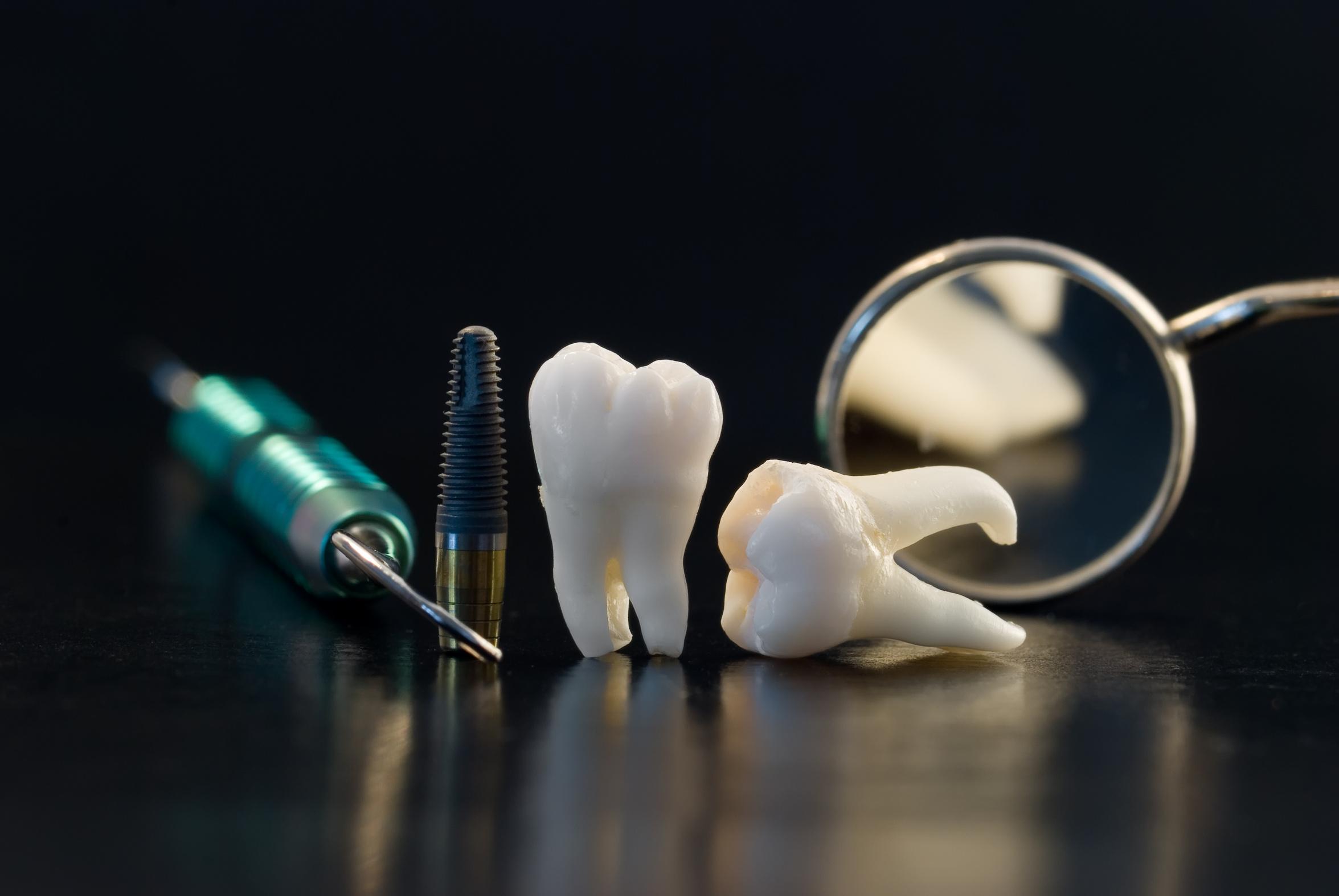 Implantologia zębów