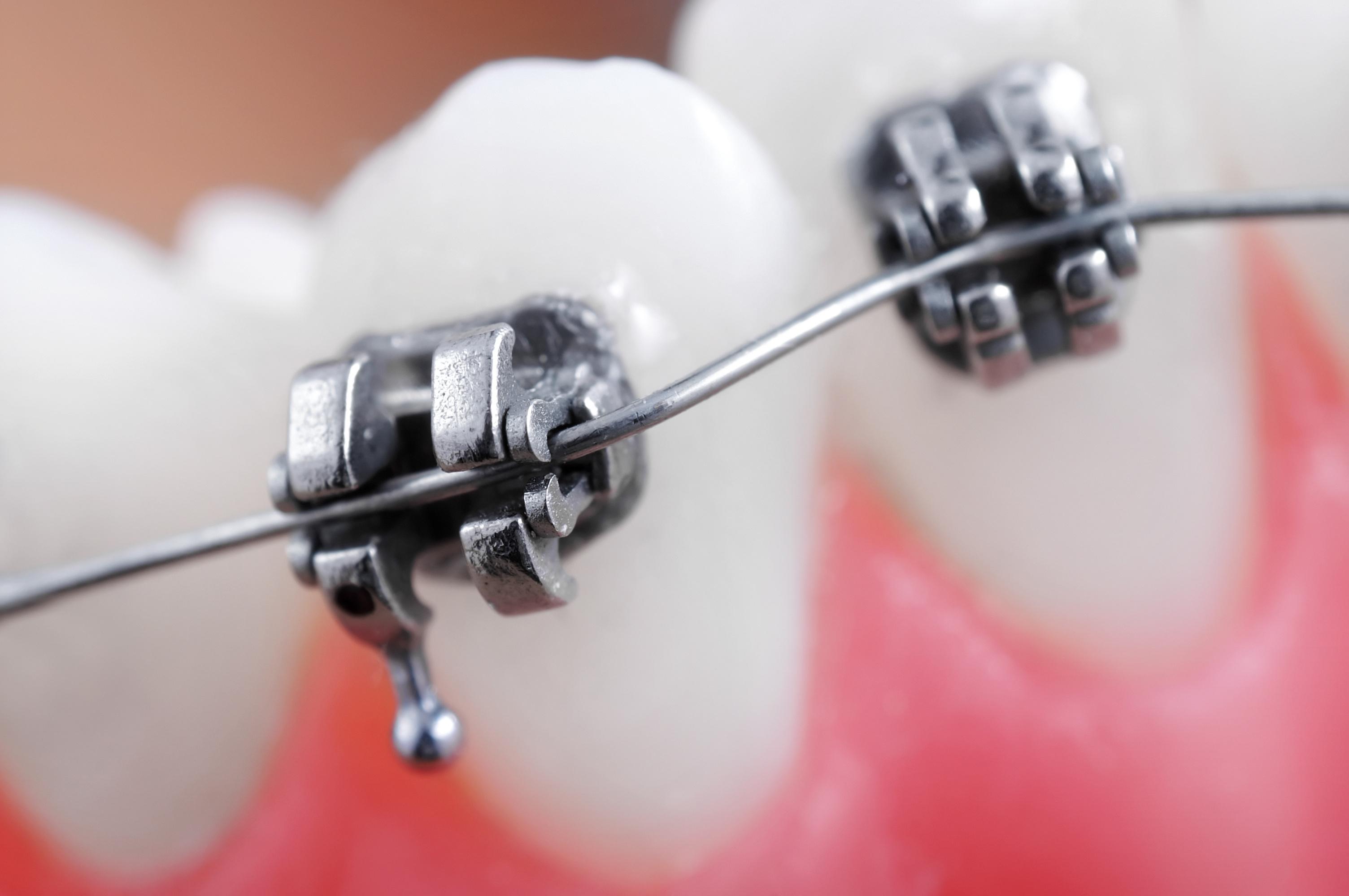 Fragment aparatu ortodontycznego