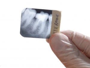 Mikro zdjęcie RGT zęba