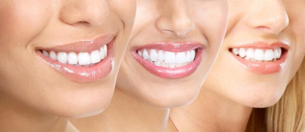 piękne zęby dzięki wybieleniu