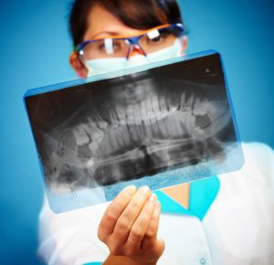 Zdjęcie rentgenowskie uzębienia