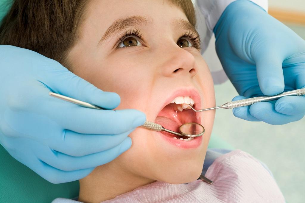 Lakowanie zębów w profilaktyce stomatologicznej