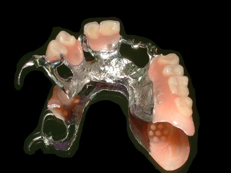 zdjęcie przedstawiające implanty zębowe