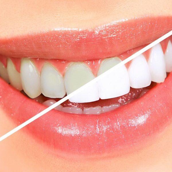 widoczny efekt wybielania zębów