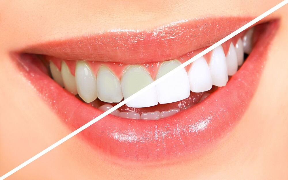 Widoczny efekt wybielania zębów Białystok
