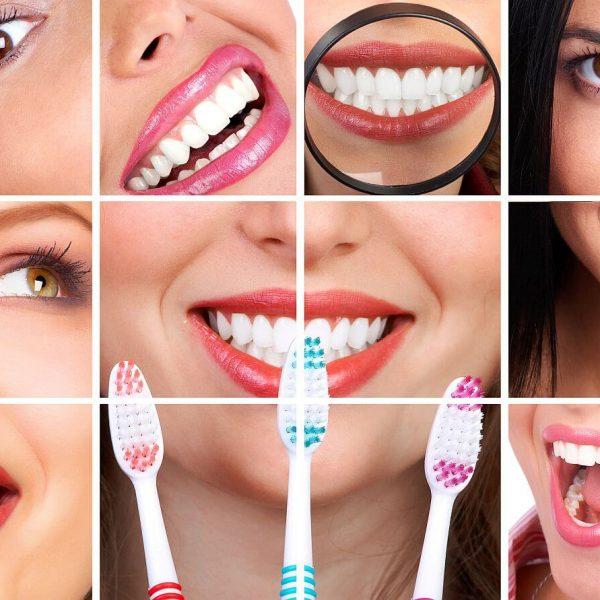 Powody przebarwień zębów Białystok