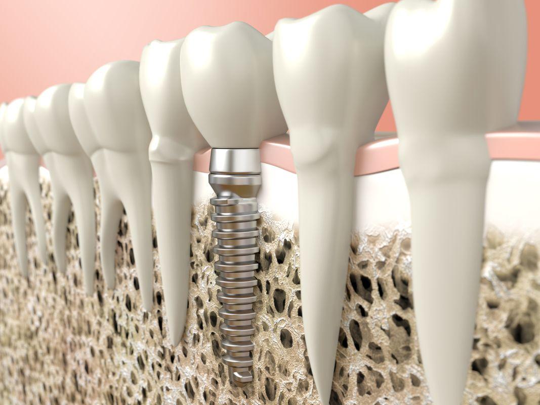 Implant dentystyczny Białystok