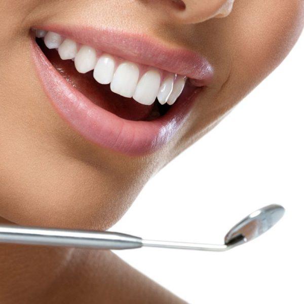 Dziewczyna po wybielaniu zębów Białystok