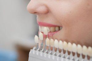 Wybielanie zębów u dentysty wybieranie licówek Białystok